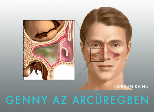 kronikus arcureg gyulladas hogyan kezeljük a térd diszlokációját