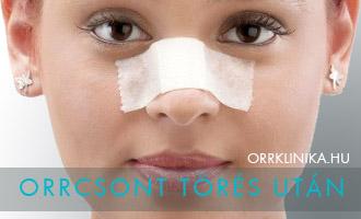 látás orr törés életkorhoz kapcsolódó látásromlási homeopátia